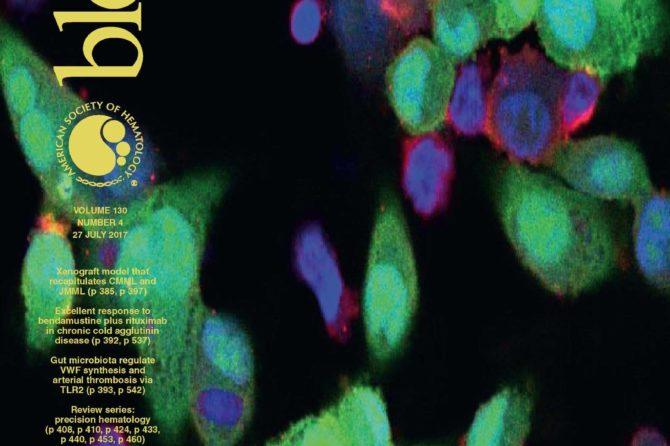 Επαναλαμβανόμενες μεταλλάξεις ΕΤΝΚ1 σε άτυπη χρόνια μυελογενή λευχαιμία